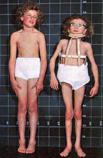 Somatotyp dětí s homocysteinurií.