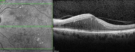 OCT obraz (Spectralis OCT; Heidelberg Engineering) difuzního až cystoidního diabetického makulárního edému levého oka, na černobílém obrázku patrny laserové jizvy v makule, na horizontálním řezu sítnice je zachycena částečně odloučená zadní plocha sklivce, která adheruje k vrcholu edému a k papile zrakového nervu. Nález vhodný k aplikaci inhibitorů růstových faktorů do nitra oka.