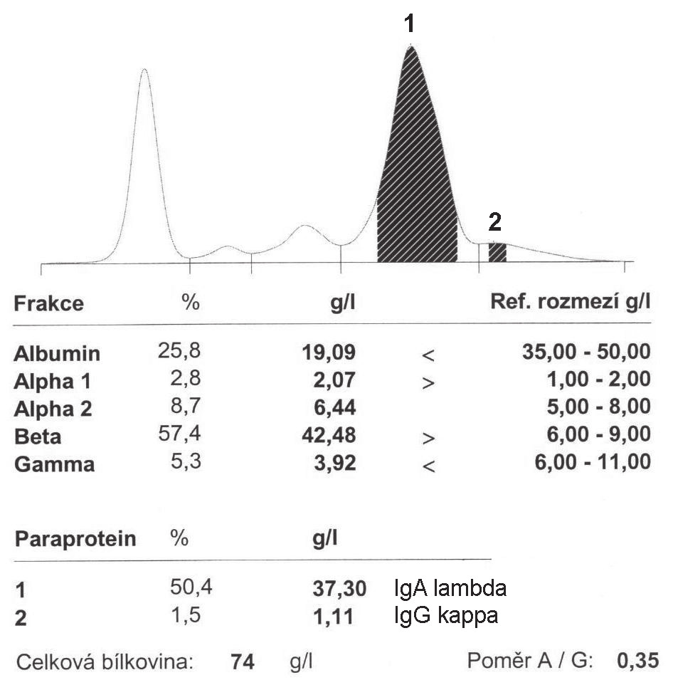 Fig. 2. Serum electrophoresis in biclonal gammopathy IgGκ-IgAλ at the time of diagnosis (a), and at the time of transformation into symptomatic multiple myeloma IgAλ (b).