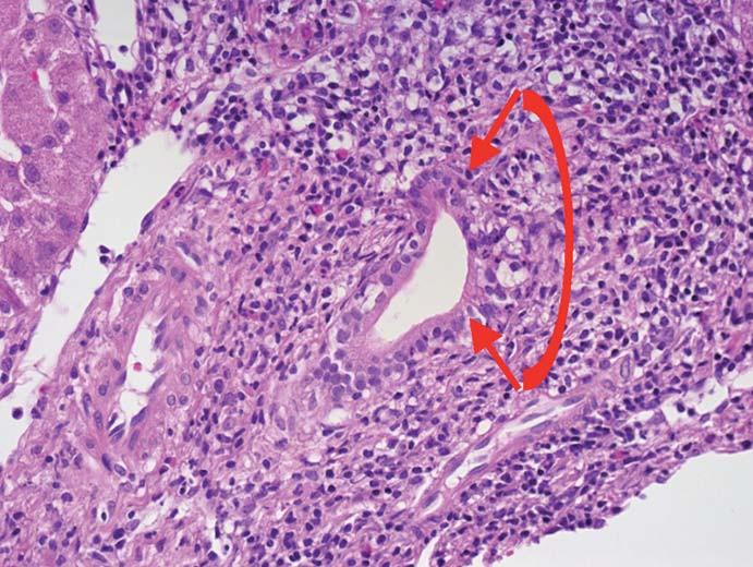 Akutní celulární rejekce s poškozením žlučovodu (v červeně označené oblasti mezi šipkami je zřetelná destrukce žlučovodu).