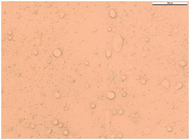 Obr. 1. Lidokainový emulgel s 4 % lidokainu, 1 % levomentholu bez přísady trometamolu (90. den od přípravy, zvětšení 400x)