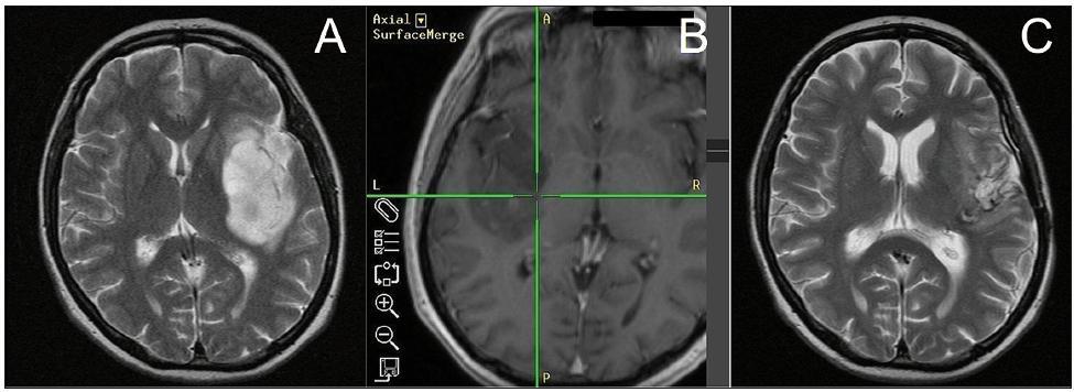 A. MR-T2 vážený obraz 52leté pacientky (N.2) s inzulárním AA (Yaşargil 3A) před operací. B. MR-T1 vážený obraz intraoperativní navigace zobrazující dosažení mediálního okraje nádoru. C. MR-T2 vážený obraz stejné pacientky 18 měsíců po operaci a dokončené adjuvantní chemoradioterapii (na časné MR po operaci 94% radikalita resekce).