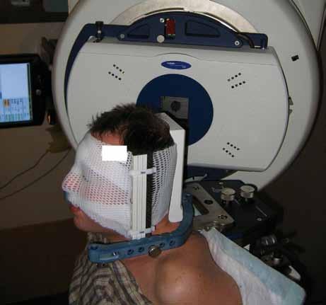 Stereotaktická radioterapie X-nožem, fixace ve stereotaktické masce (Varian, BrainLab systém, externí mikrokolimátor, Masarykův onkologický ústav v Brně).