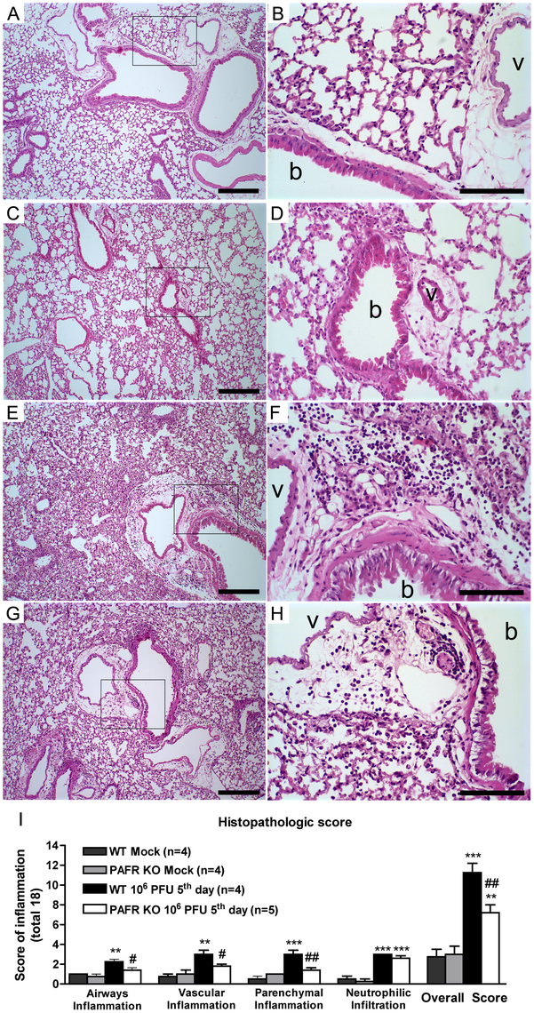 Histological changes after Influenza A WSN/33 H1N1 lethal infection in WT and PAFR deficient mice.