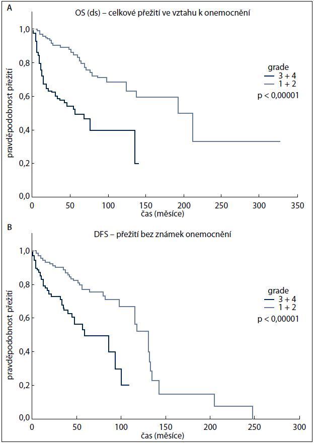 A, B. Křivky přežití (A – celkové přežití ve vztahu k onemocnění OS(ds), B – přežití bez známek onemocnění (DFS) u pacientů s RCC v závislosti na gradu tumorů).