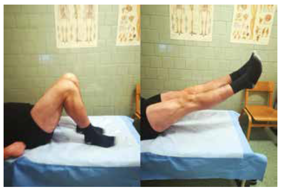 Rozsah pohybu oboch kolien u pacienta 1 rok po operačnej liečbe bilaterálnej ruptúry ligamentum patellae<br> Fig. 5: Range of motion of the both knees 1 year after surgical treatment of bilateral patellar tendon rupture