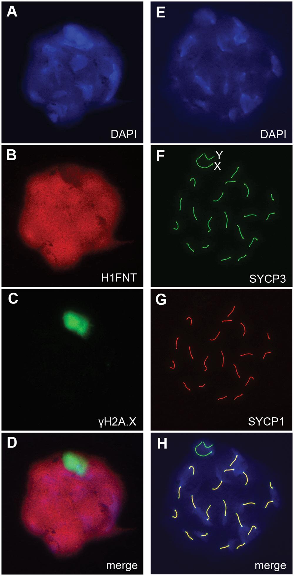 Autosomal synapsis in <i>H3f3b</i> heterozygous spermatocytes.