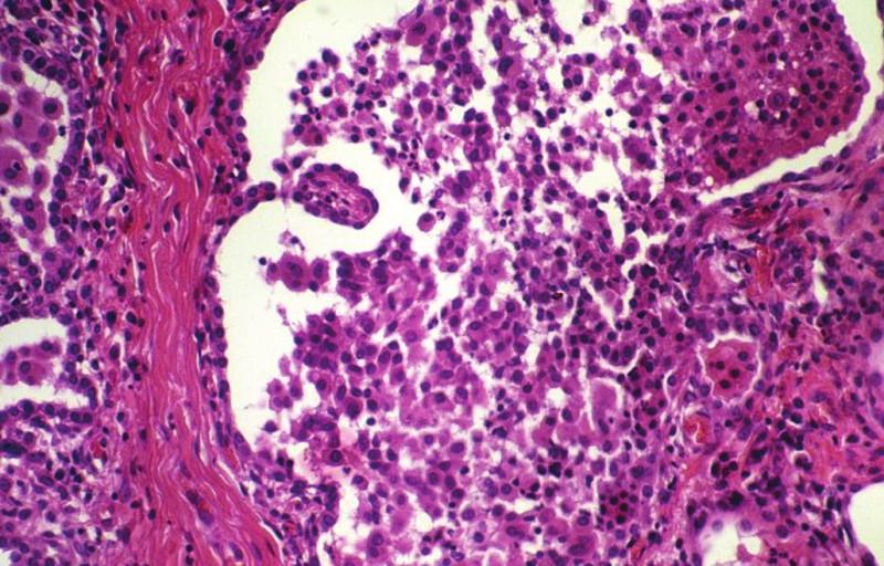 Deskvamativní intersticiální pneumonie s četnými makrofágy v alveolárním prostoru. HE, 160krát