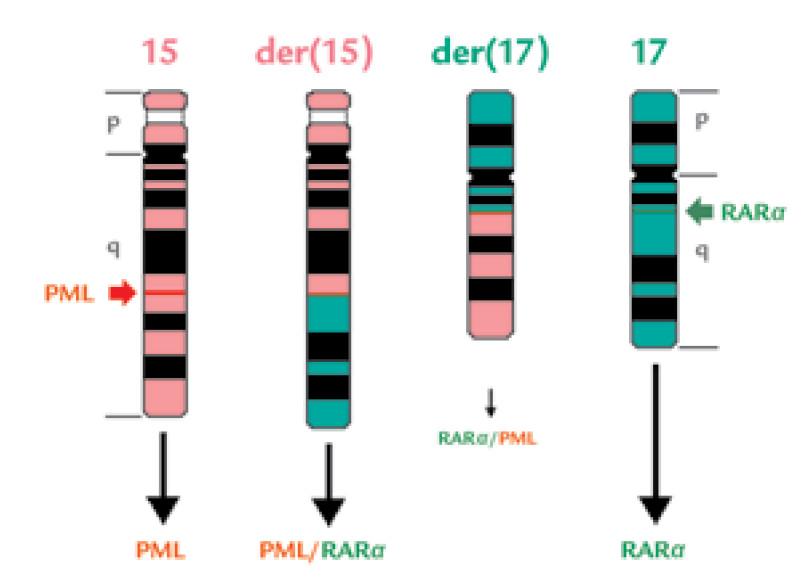Schematické znázornění reciproké, balancované t(15;17).
