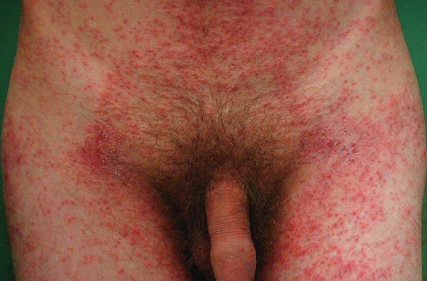 Drobnopapulózní exantém u generalizovaného svrabu na trupu