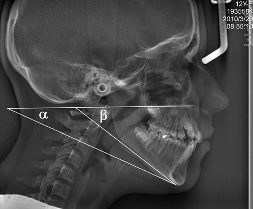 Kefalometrická snímka pacientky č. 2, výrazný je divergentný, posteriorotačný rast sánky, uhol α predstavuje fyziologickú hodnotu uhlu, ktorý zvierajú rovina tvrdého podnebia a tela sánky, uhol β je ten istý uhol u našej pacientky. Fig. 4. Cephalometric picture of patient No.2: There is a divergent, posteriorotational growth of the mandible, the angle α represents physiological value of the angle, which is given by plane of the hard palate and body of the jaw, angle β is the same angle in our female patient.