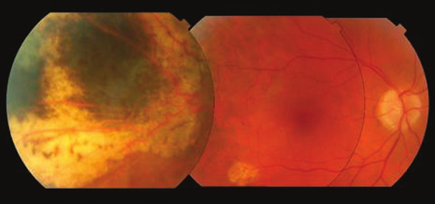 Pacient 1. Posledné oftalmologické vyšetrenie, 1 týždeň pred úmrtím z metastáz, 7,6 rokov po protónovej rádioterapii preukazuje intaktnú makulu a atrofický tumor s postradiačnými fibrotickými okrajmi