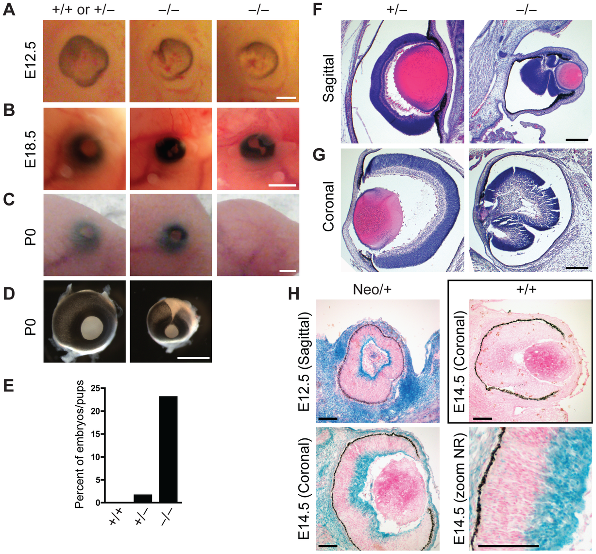 Defects in eye development in Jarid1b knockout embryos.