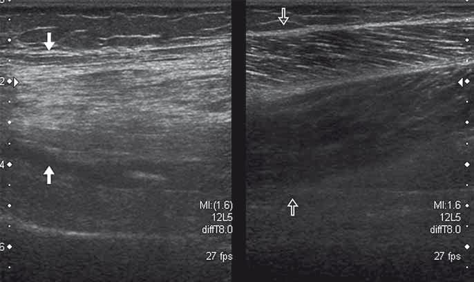 Denervace a tuková atrofie svalu (vlevo bílé šipky) u pacienta s lézí nervus ischiadicus po náhradě kyčelního kloubu.  Fig. 3. Denervation and fatty atrophy of the thigh muscle (white arrows) in a patient with sciatic nerve palsy after hip joint replacement.