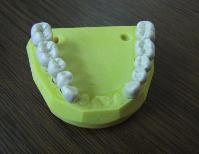 "Zuby zasazené v ""odublovaném"" modelu."