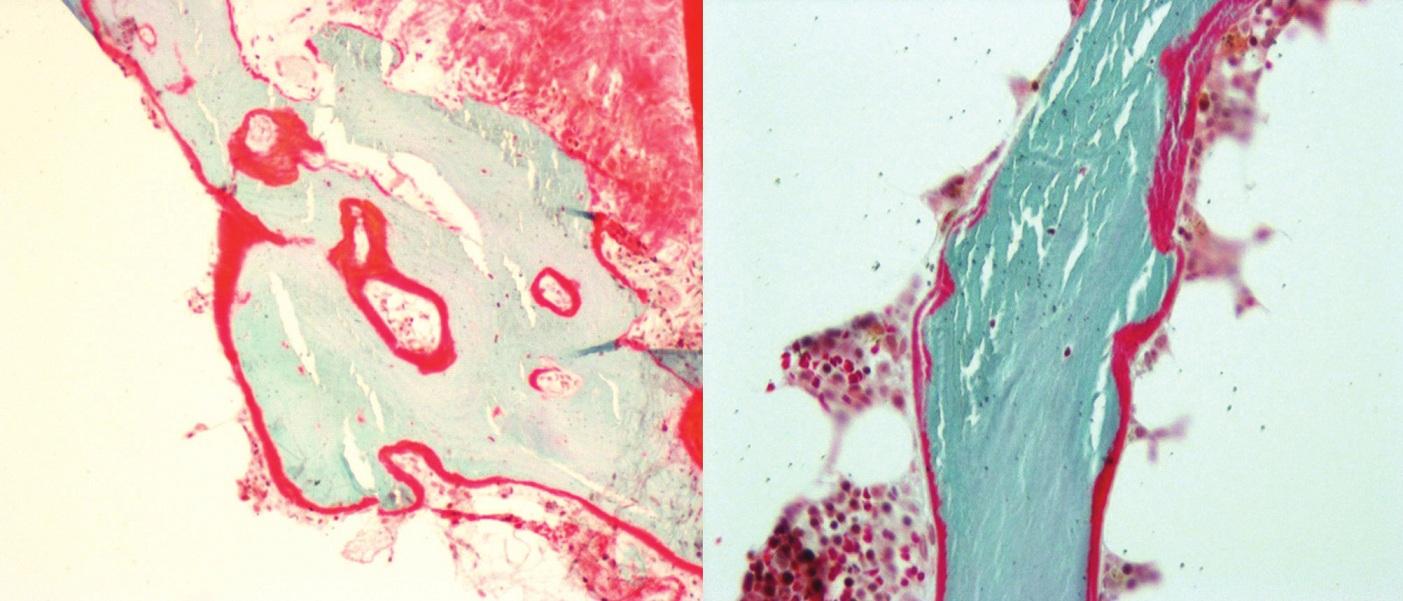 Histomorfometrie kostní tkáně (Goldner 10x, osteoid červeně, kostní trámce modře)