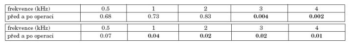 a. Statistická významnost změn vzdušného vedení před a po operaci celého souboru. b. Statistická významnost změn kostního vedení před a po operaci celého souboru