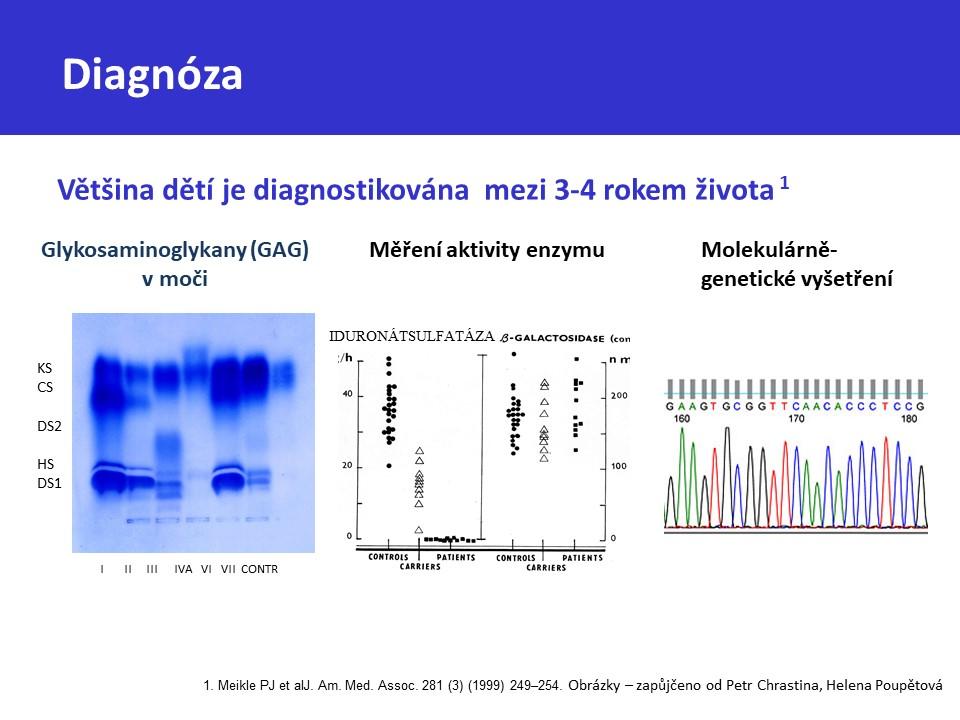 Mukopolysacharidóza typ II – Hunterův syndrom - 28