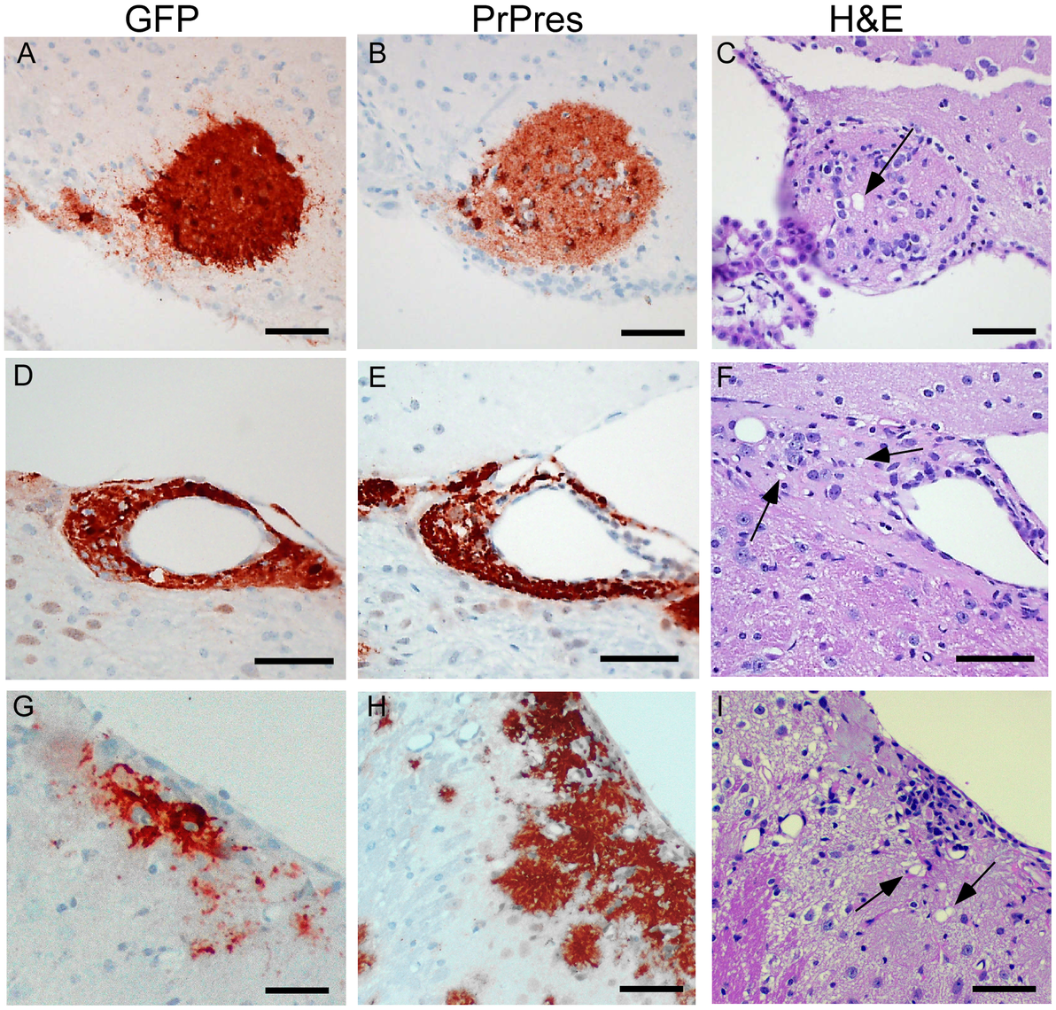 Detection of PrPres and vacuolation in brain tissue of PrPnull and tg44+/− mice with C57BL/6 brain grafts.