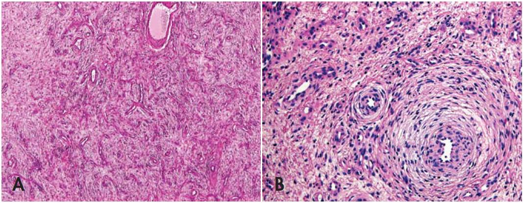 Fig. 1. Angiofibroma-like perineurioma. Microscopic features. A: At low-power, an angiofibroma-like morphology is apparent, with rare and subtle concentric perivascular arrangement of the cells. B: Onion-like perivascular arrangement of the cells (hematoxylin and eosin, magnifications x40, x100, respectively).
