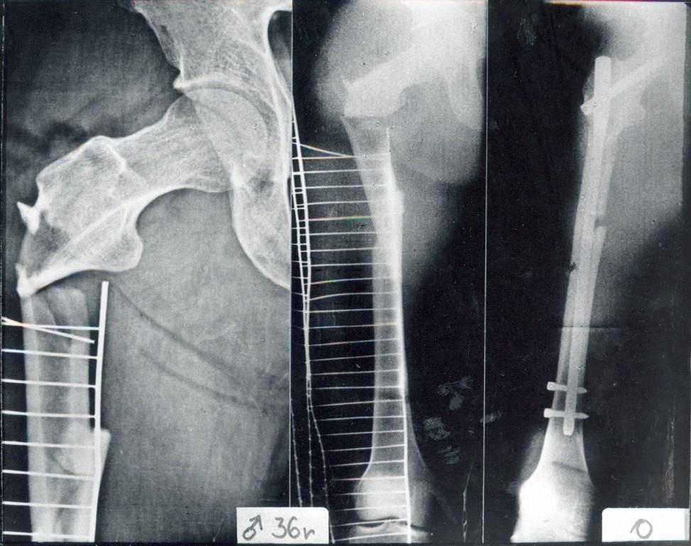 Obr. 5a-c Pacient, 36 let, s tříštivou zlomeninou jdoucí od tuberculum innominatum až značně distálně do diafýzy (typ IV) a+b) úrazové snímky, c) pooperační snímky, osteosyntéza dlouhým Gamma hřebem, postavení úlomků je uspokojivé
