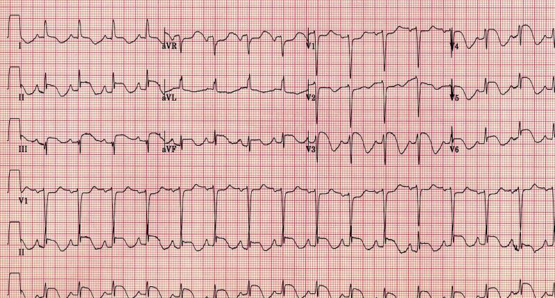 EKG pacientky při přijetí