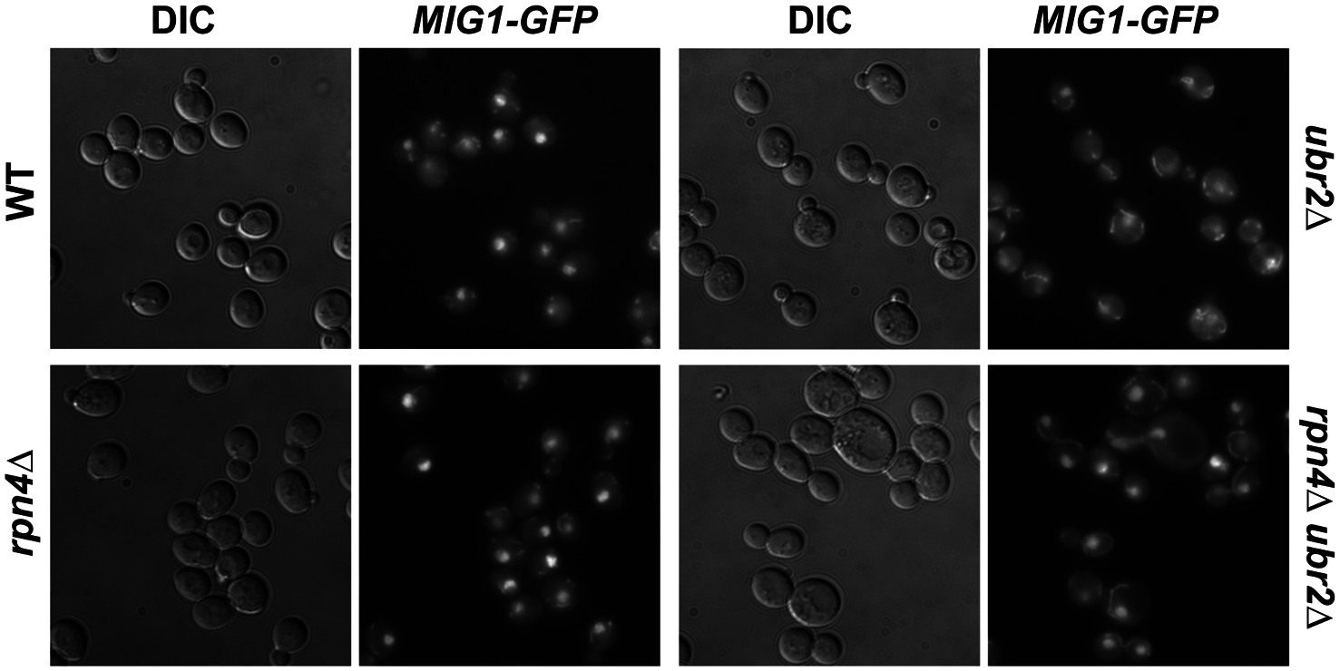 Mig1 is mislocalized in in cells with increased proteasome capacity.