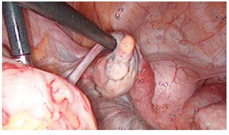 Figure 6. On the left rudimentary horn with ovary and fallopian tube