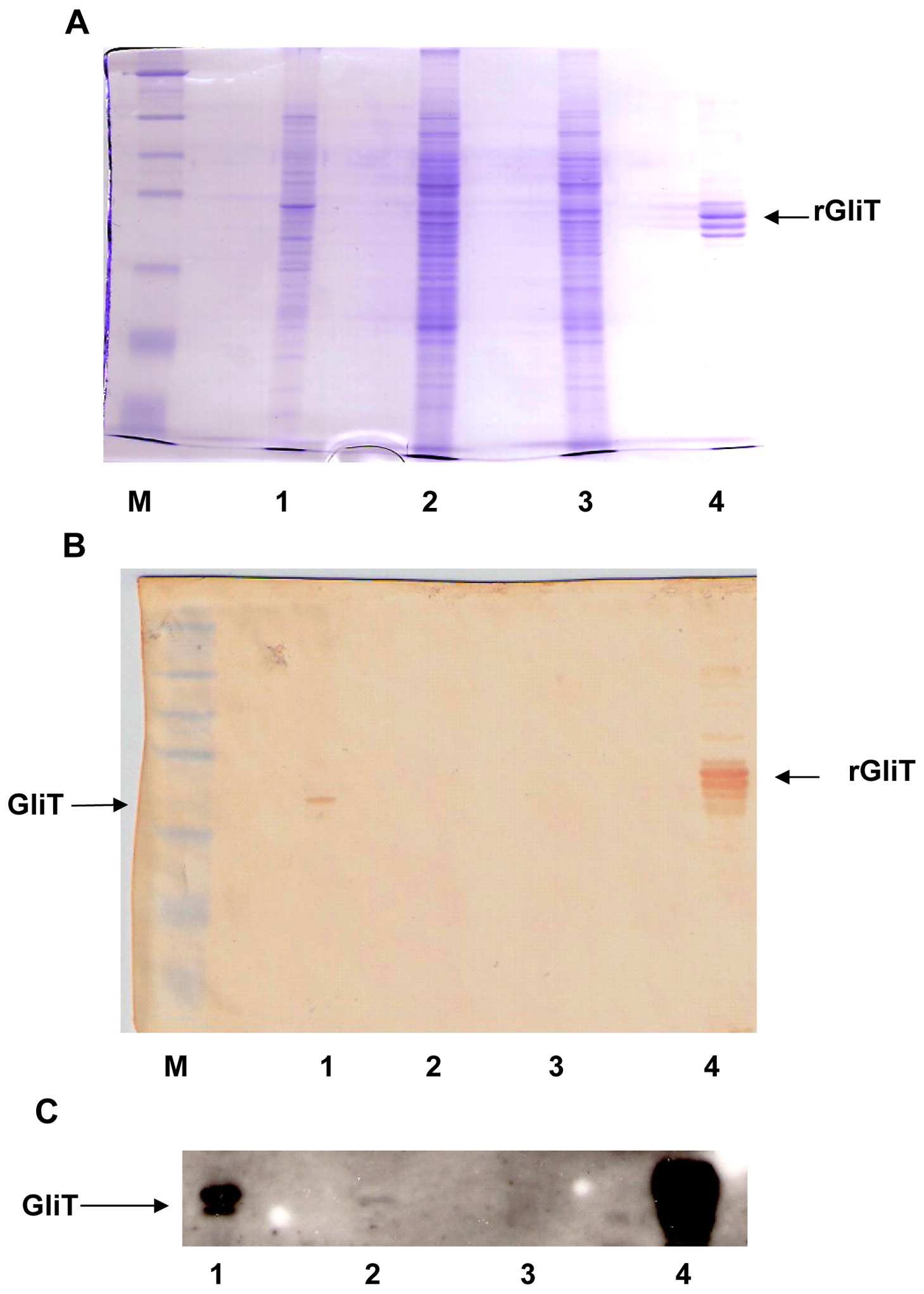 Immunoaffinity purified human IgG detects native GliT in <i>A. fumigatus</i>.