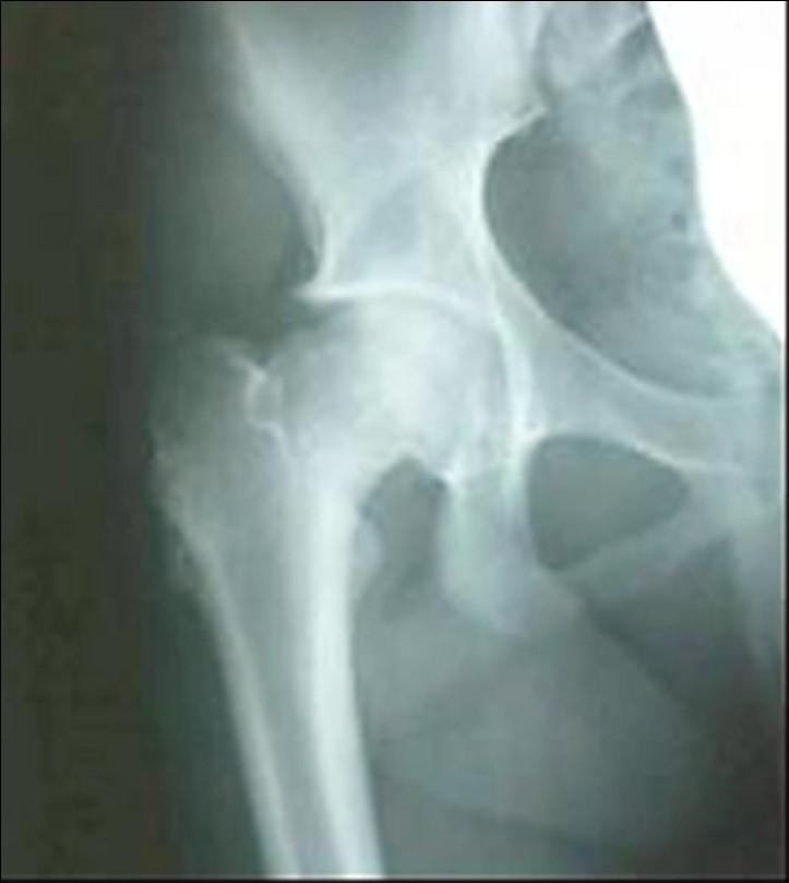 Za dva roky po výkonu má kloubní štěrbina přiměřenou šíři, hlavice femuru je bez strukturních změn přihojená v mírné varozitě