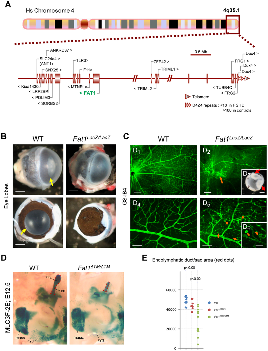 Selective changes in <i>Fat1</i> mutant mice recapitulate the clinical picture of FSHD.