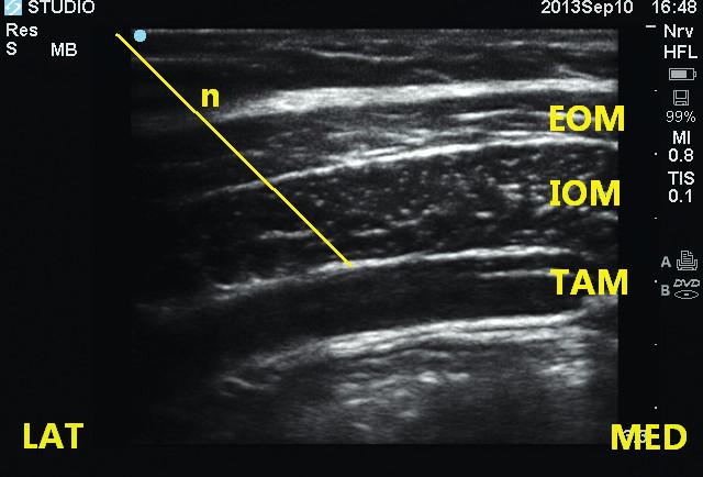 Obr. 5a, 5b Technika ultrazvukem naváděného TAP bloku Sonda je položena horizontálně do Petitova trojúhelníku, zobrazeny m. obliquus abdominis externus, internus a transversus abdominis. Jehla je vedena IP technikou mezi hluboký šikmý sval a m. transversus abdominis. EOM – m. obliquus abdominis externus, IOM – m. obliquus abdominis internus, TAM – m. transversus abdominis, n – jehla.