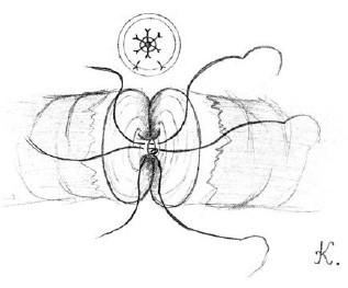 Přiblížení přední slizniční vrstvy obou konců chámovodu pomocí tří dvojitých 10-0 nylonových stehů Fig. 2. The approximation of the anterior mucosal layers for both ends of vas deferens with tree double armed 10-0 nylon sutures