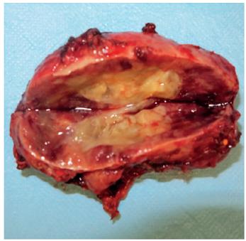 Laparoskopicky extrahovaný feochromocytóm u 12-ročného pacienta s potvrdeným VHL syndrómom. Snímka laparoskopicky extrahovaného tumoru vľavo veľkosti 70 x 40 x 30 mm. <br><b>Fig. 3.</b> Laparoscopically extracted pheochromocytoma in 12 years old patient with confirmed VHL syndrome. Photo of laparoscopically extracted left sided tumor 70 x 40 x 30 mm of size.