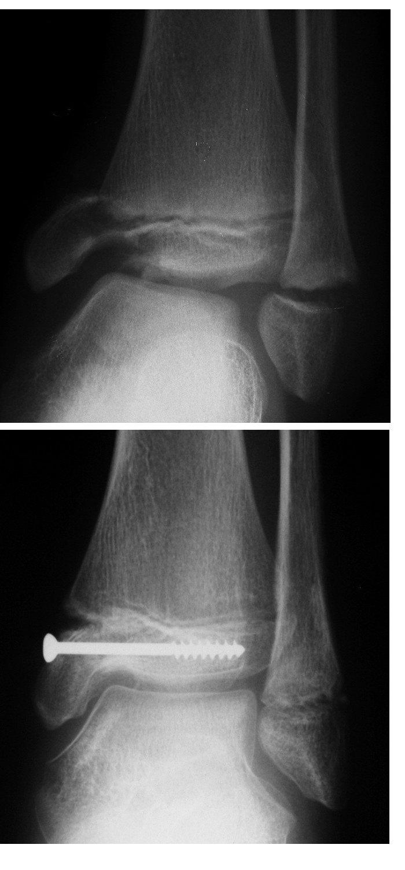 Zlomenina distální epifýzy tibie – vnitřního kotníku – typu Salter Harris III; separace distální epifýzy fibuly typu Salter Harris I:  a) úrazový RTG snímek v AP projekci b) RTG snímek po osteosyntéze tibie jedním šroubem transepifyzárně v AP projekci; fibula léčena pouze repozicí.