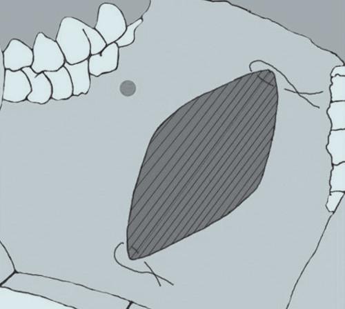 V oblasti apexů v místě odběru štěpu jsou umístěny dva stehy.