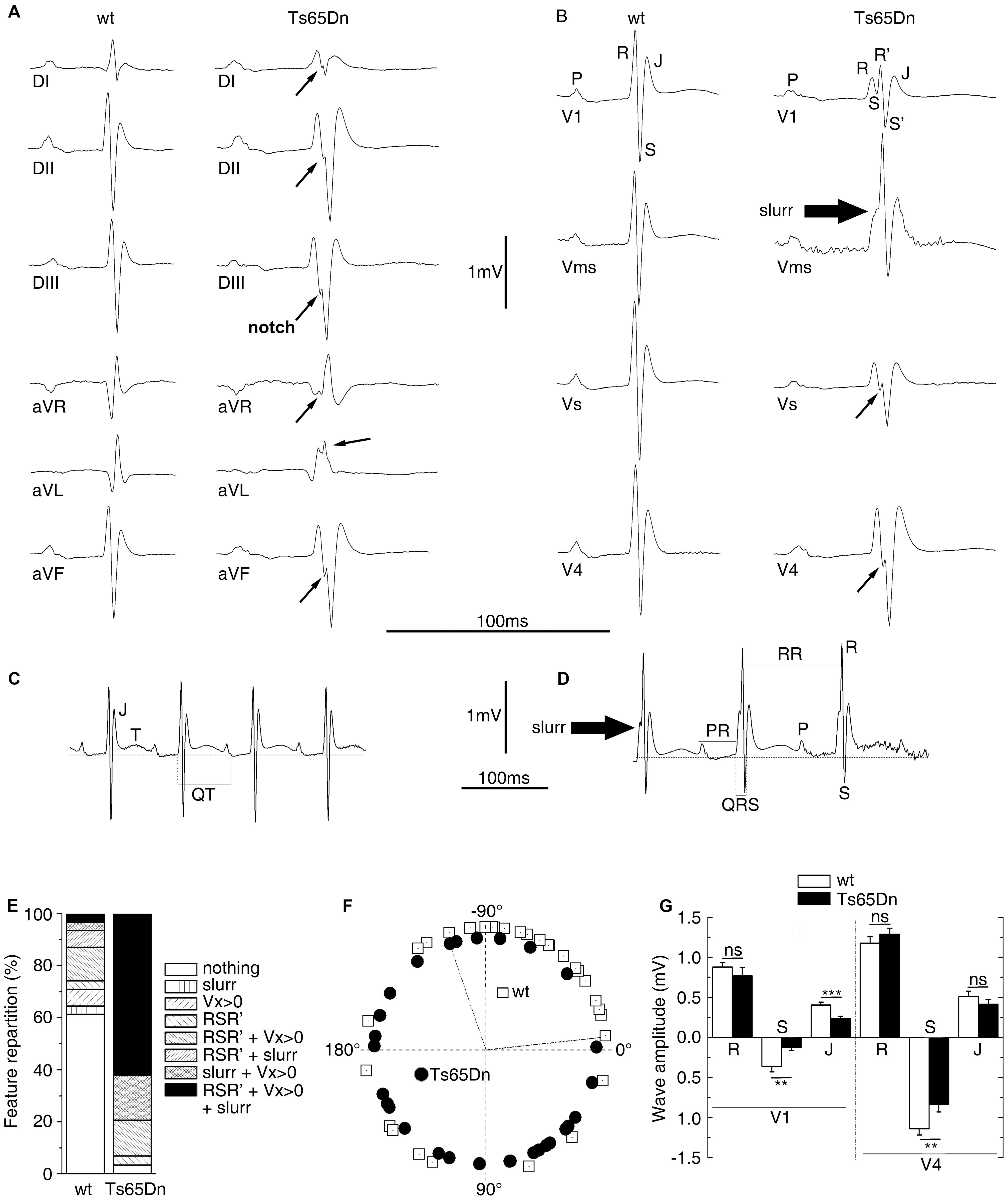 ECG analyses of urethane anaesthetized Ts65Dn adult mice revealed cardiac conduction anomalies.