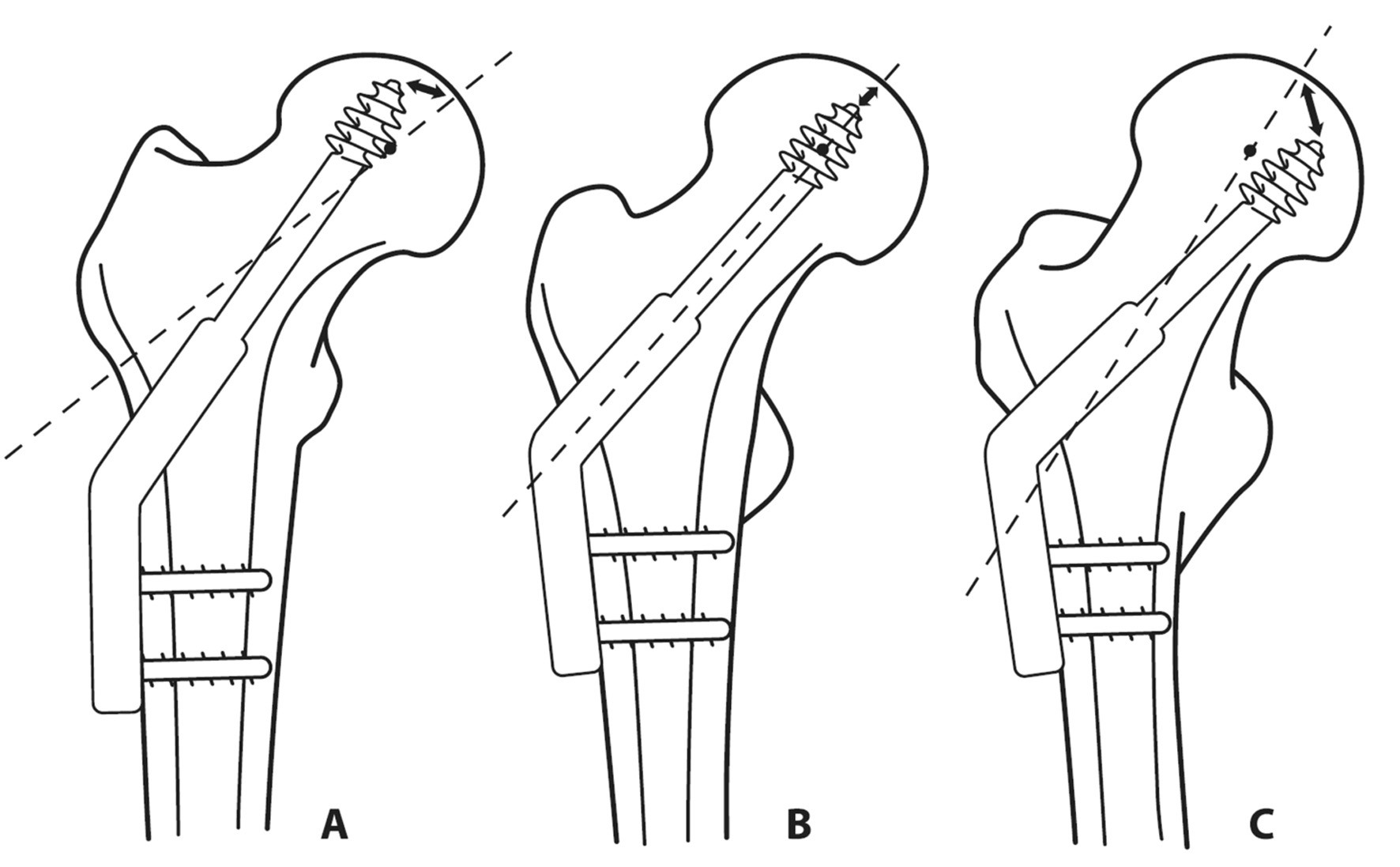 Vztah úhlu repozice a úhlu implantátu Úhel implantátu by měl respektovat úhel repozice: a – úhel implantátu je větší než úhel repozice, špička šroubu směřuje do horní části hlavice, což zvyšuje riziko proříznutí; b – optimální stav, úhel repozice a úhel implantátu jsou totožné, c – úhel implantátu je menší než úhel repozice, protože při kompresi dochází ke skluzu v ose implantátu, směřuje baze krčku proti velkému trochanteru, při velkém rozdílu úhlů může dojít k rotaci proximálního úlomku na šroubu.  Fig. 10: Relation between the reduction angle and the implant angle The implant angle should respect the reduction angle: a – the implant angle is greater than the reduction angle; the screw tip passes in the direction of the upper part of the femoral head which increases the risk of perforation; b – optimal condition, the reduction angle and the implant angle are identical, c – the implant angle is smaller than the reduction angle; as there occurs gliding along the axis of the implant during compression, the base of the femoral neck is directed toward the greater trochanter; a significant difference in the angles may result in rotation of the proximal fragment on the screw.