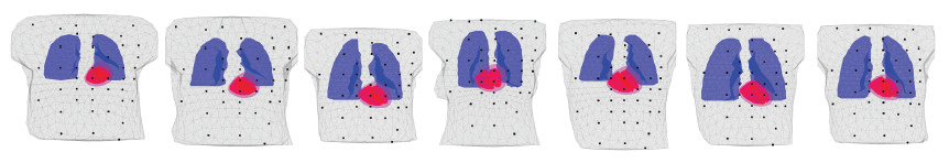 Fig. 2: Seven realistic torso models (6 men, 1 woman) based on real MRI scans were used in the forward simulations. For each torso the size, position and rotation of the inserted simplified heart model was adjusted in agreement with the original heart in that torso.