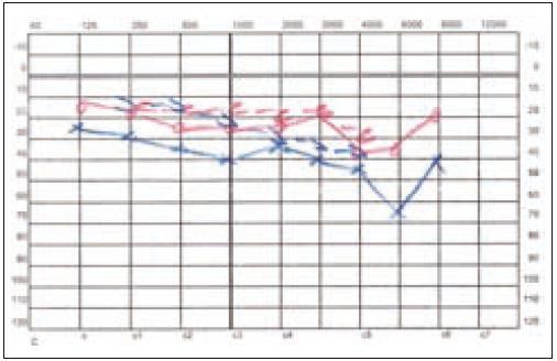 Stav sluchu po antromastoidektomii vlevo u pacienta 2.