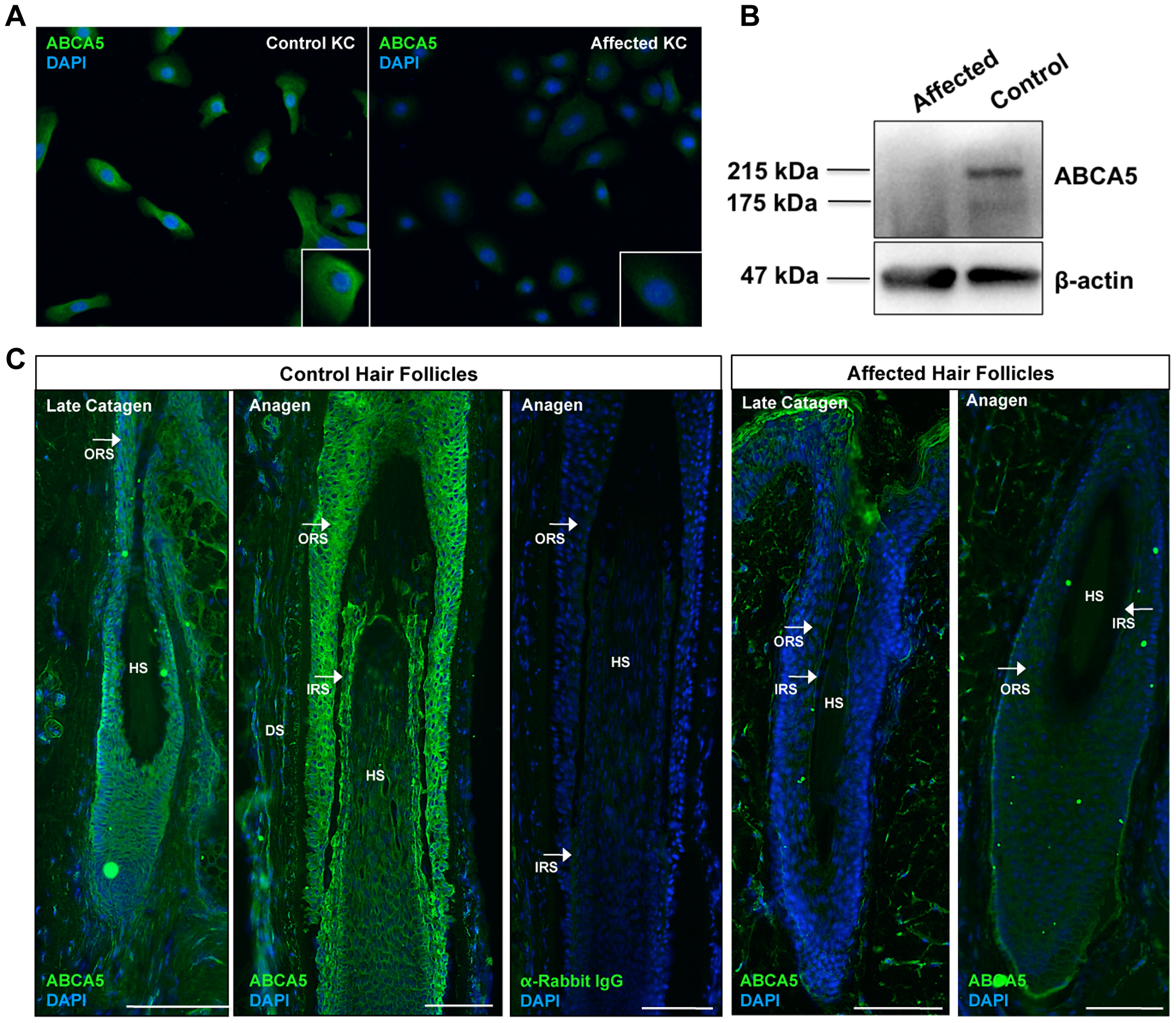 ABCA5 protein levels are significantly reduced in CGHT patient keratinocytes and hair follicles.