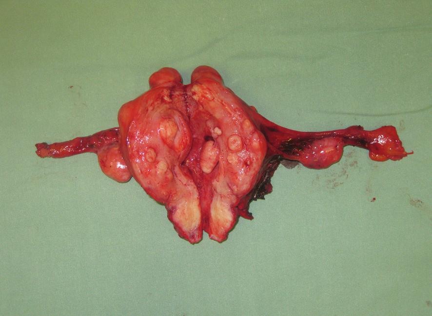 Preparát myomatózní dělohy s adnexy