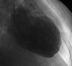 Ventrikulografie zachycující nehomogenní obraz stěn levé komory srdeční