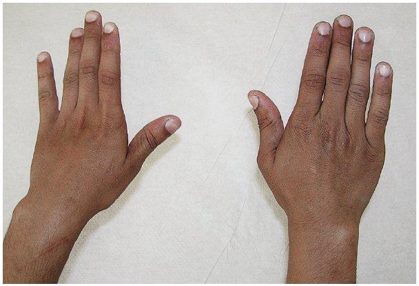Obnova aktivní extenze zápěstí a prstů u chlapce z obrázku č. 4 po provedení šlachových transpozic – převedení úponu šlachy m. pronator teres do radiálních extenzorů karpu, m. flexor carpi ulnaris do m. extenzor digitorum communis a m. palmaris longus do dlouhého extenzoru palce. Stav za 6 měsíců po šlachové korekci.