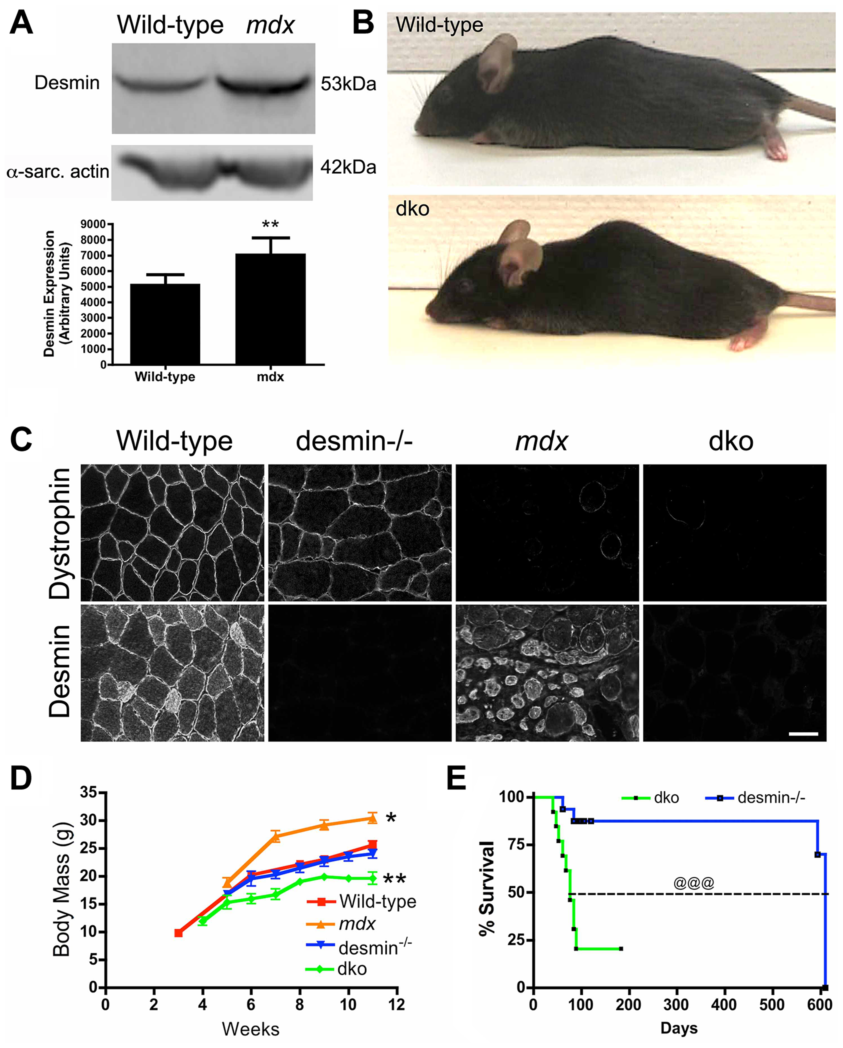 The genetic deletion of desmin from <i>mdx<sup>4cv</sup></i> mice reduces body mass and survival.