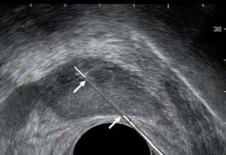 Trajektorie (mezi bílými šipkami) vnitřní jehly během biopsie.