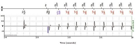 Intrakardiální elektrogram epizody detekce v zóně VF přenesené systémem Biotronik Home Monitoring<sup>TM</sup>.