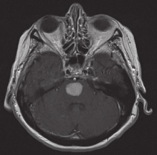 Magnetická rezonance, SE MTC T1 s kontrastní látkou i.v. Pacientka C. R. 1934, kontrastně se sytící infiltrát v mozkovém kmeni při záchytu lymfomu.