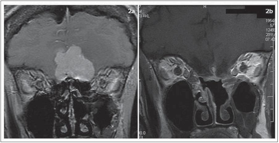 Olfaktoriální meningeom, T1 vážené obrazy s kontrastní látkou, koronární řezy. Obr. 2a) Předoperační MR, obr. 2b) kontrolní MR po radikální resekci meningeomu, na bazi lební se po kontrastní látce sytí nazoseptální lalok, který byl použit na plastiku přední jámy lební.