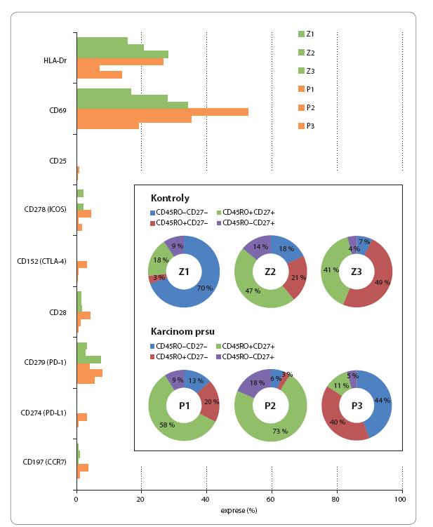 Imunofenotyp cirkulujích γδ T lymfocytů u zdravých kontrol (Z1–Z3) a pacientek s karcinomem prsu (P1–P3).